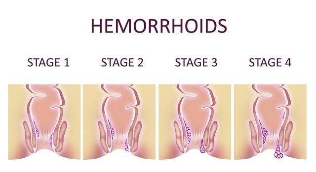 Etapy rozwoju hemoroidów leczonych w gabinecie Derm-Estetyka